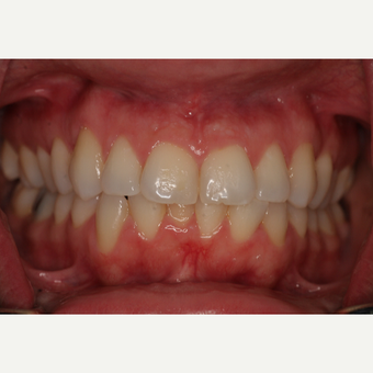 35-44 year old woman treated with Invisalign before 3135641