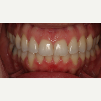35-44 year old woman treated with Invisalign after 3135641