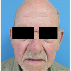 65-74 year old man treated with Mohs Surgery after 2788030
