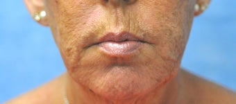 66 Year Old Female Treated for Unacceptable Cosmetic Appearance of the Face after 1075766