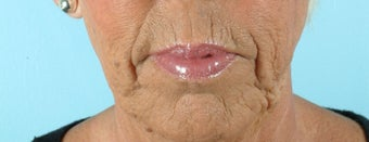 66 Year Old Female Treated for Unacceptable Cosmetic Appearance of the Face
