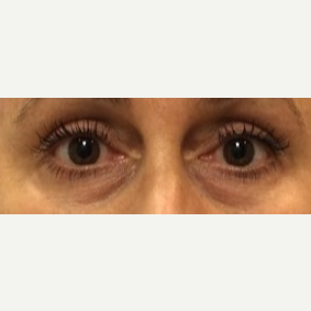 55-64 year old woman treated with Restylane under eyes before 3769586