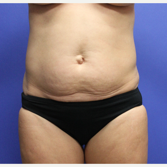 35-44 year old woman treated with Tummy Tuck before 3650937