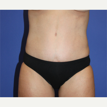 35-44 year old woman treated with Tummy Tuck after 3650937