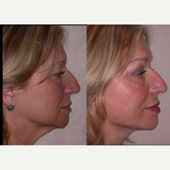 55-64 year old man treated with Facelift before 3602538