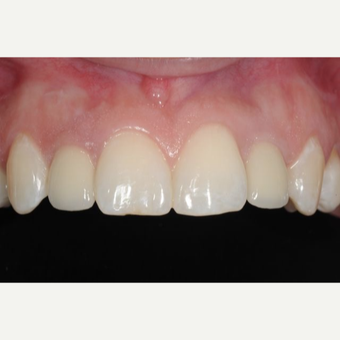 Woman with congenitally missing lateral incisors treated with Dental Implants after 3707957