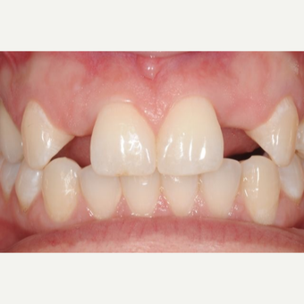 Woman with congenitally missing lateral incisors treated with Dental Implants before 3707957