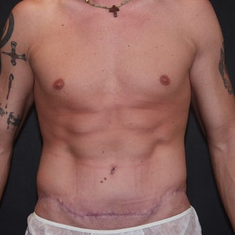 25-34 year old man treated with Tummy Tuck after 2483979