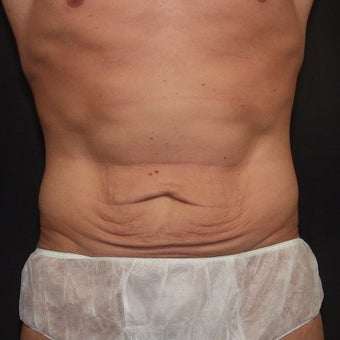 25-34 year old man treated with Tummy Tuck before 2483979