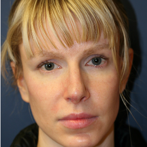 25-34 year old woman treated with Rhinoplasty before 3559790