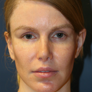 25-34 year old woman treated with Rhinoplasty after 3559790