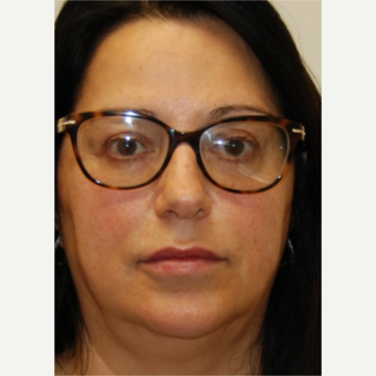 55-64 year old woman treated with Silikon 1000 for Lip Augmentation - Two treatments