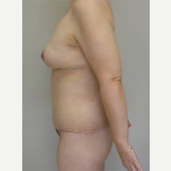 35-44 year old woman treated with Body Lift after 3402363