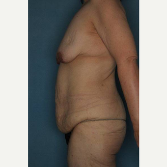 35-44 year old woman treated with Body Lift before 3402363