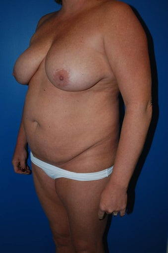 Breast lift 1270678