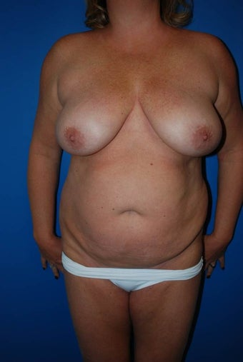 Breast lift before 1270678