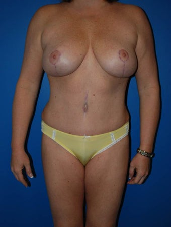 Breast lift after 1270678