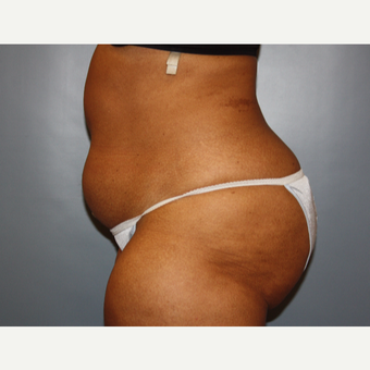 45-54 year old woman treated with Liposuction before 3683150