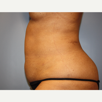 45-54 year old woman treated with Liposuction after 3683150
