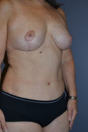 Tummy tuck and breast lift.