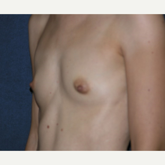 35-44 year old woman treated with Breast Augmentation before 3455296