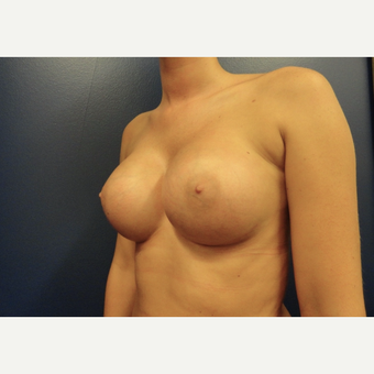 18-24 year old woman treated with Breast Augmentation after 3265177