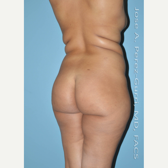18-24 year old woman treated with Brazilian Butt Lift before 3045891