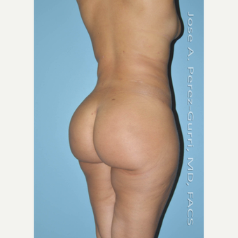18-24 year old woman treated with Brazilian Butt Lift after 3045891