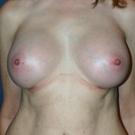 55-64 year old woman treated with Breast Augmentation after 1683584