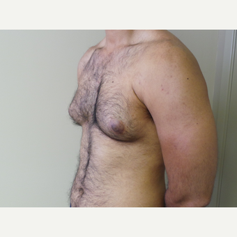 25-34 year old man treated with Male Breast Reduction before 3454570