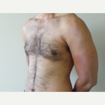 25-34 year old man treated with Male Breast Reduction after 3454570
