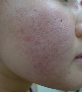 eMatrix for acne and acne scarring after 1522449