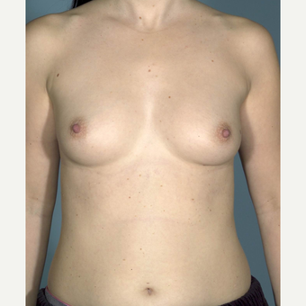 35-44 year old woman treated with Breast Augmentation before 3731679