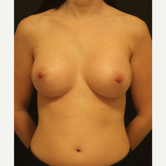 35-44 year old woman treated with Breast Augmentation after 3731679
