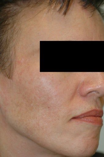 Melasma Los Angeles - No Laser Treatment after 922268