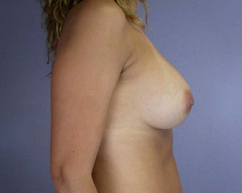 Breast Asymmetry Correction after 281344