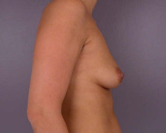 Breast Asymmetry Correction before 281344