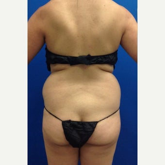 35-44 year old woman treated with Laser Liposuction Liposculpture before 2263718