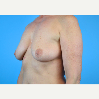 45-54 year old woman treated with Breast Implants before 3439995
