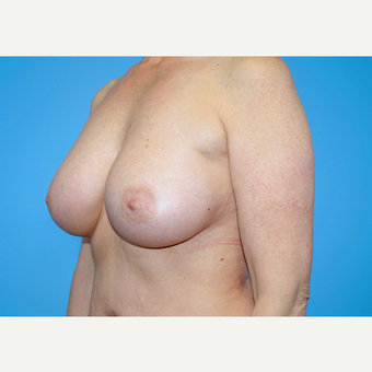 45-54 year old woman treated with Breast Implants after 3439995
