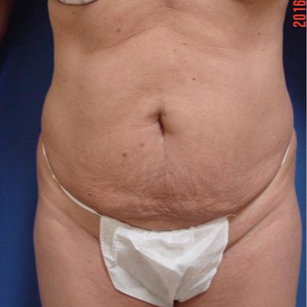 45-54 year old woman treated with Tummy Tuck before 3288325
