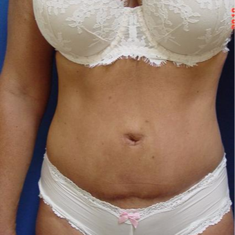 45-54 year old woman treated with Tummy Tuck after 3288325