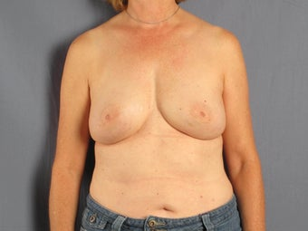 Breast reconstruction / augmentation with fat transfer after implant removal after 1141212