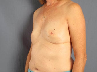 Breast reconstruction / augmentation with fat transfer after implant removal 1141212