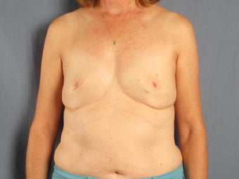 Breast reconstruction / augmentation with fat transfer after implant removal before 1141212