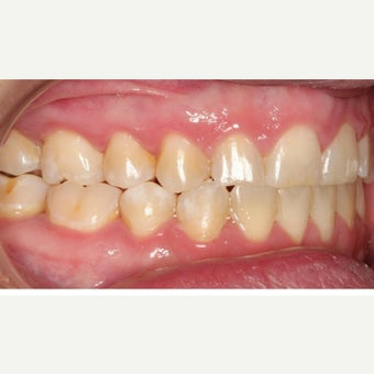 25-34 year old woman treated with Braces after 1743037