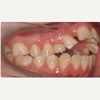 25-34 year old woman treated with Braces before 1743037