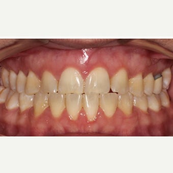 25-34 year old woman treated with Braces 1743037