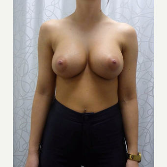 25-34 year old woman treated with Breast Augmentation after 3106543