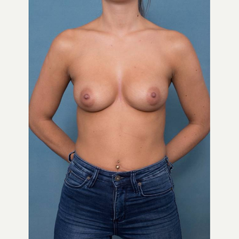 25-34 year old woman treated with Breast Augmentation before 3106543